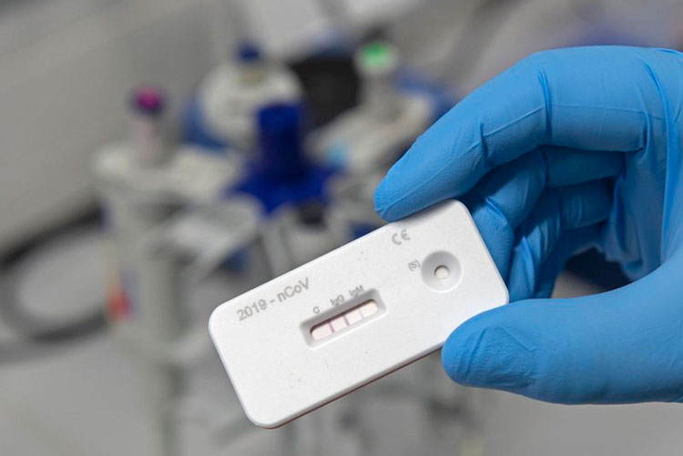 prueba-anticuerpor-coronavirus.jpg