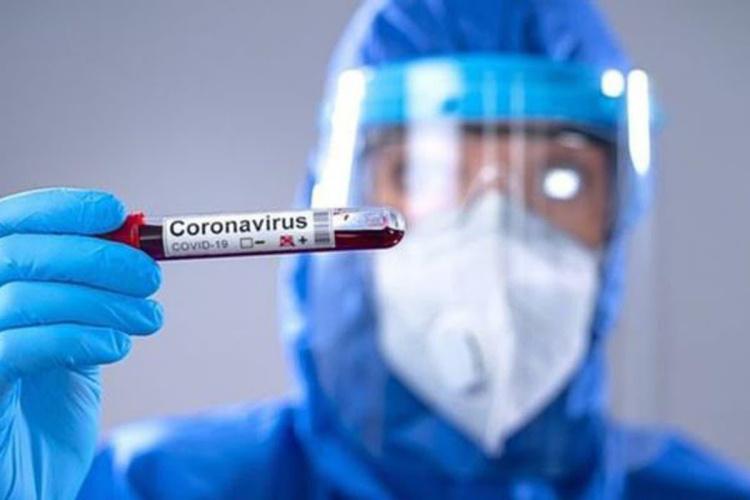 coronavirus-2-3.jpg