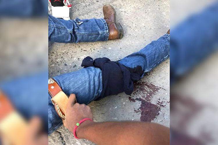 Lesionan-a-Policia-estatal-en-intento-de-asalto-.jpg